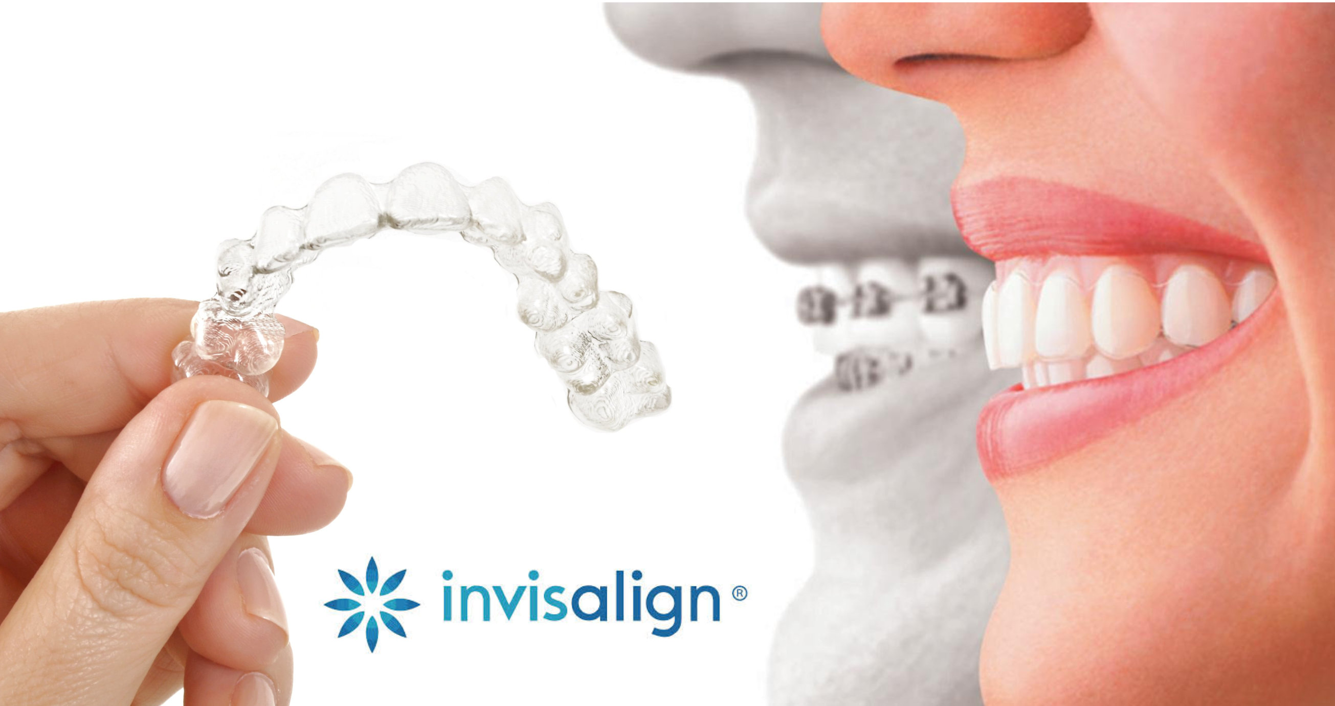 invisalign-clairemont