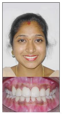 sg-braces-1-after